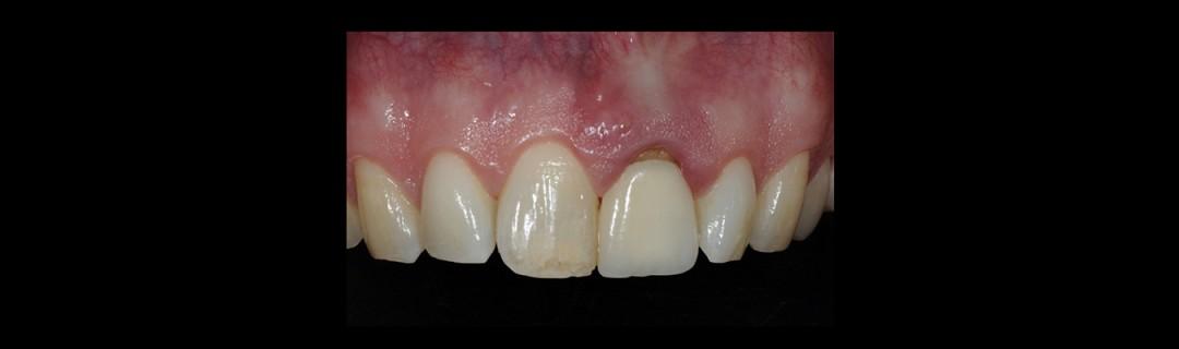 Aesthetic upper anterior implant placement case