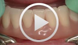 https://library.dental-campus.com/media/catalog/product//v/0/v01068de_03_1.jpg